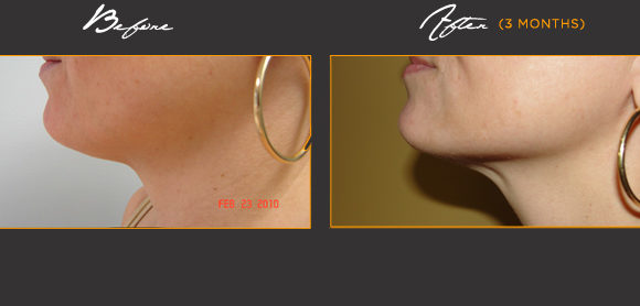 Rejuvenated Face & Neck*
