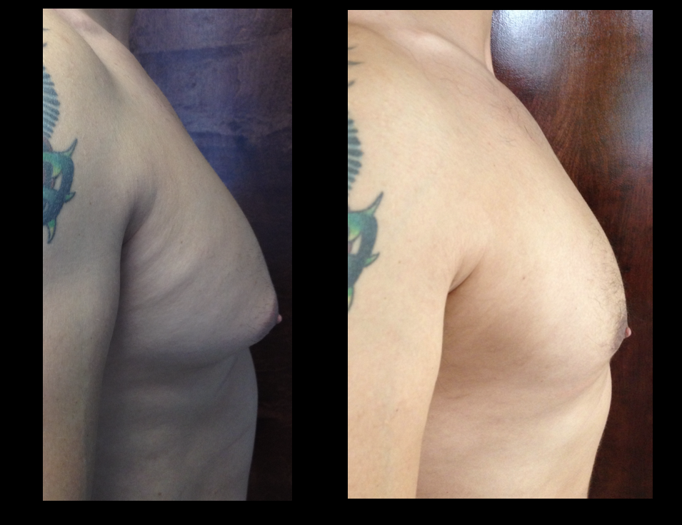 Gyno – Severe Male Breast Reduction*