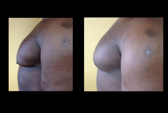 Gyno – Male Breast Reduction*
