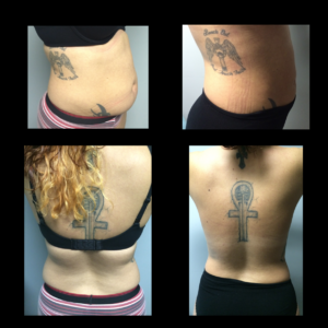 Flatter Abdomen (Note – Slimmer Back Achieved Also From Frontal Approach)*