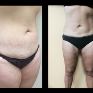 Mommy Make-Over – Anterior Torso & Thighs*