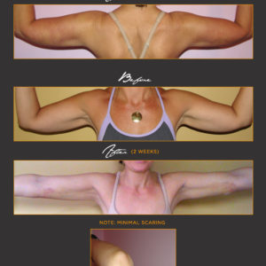 Slimmer Arms*