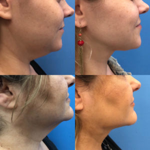 Mother/Daughter Neck Rejuvenation with Smartlipo*