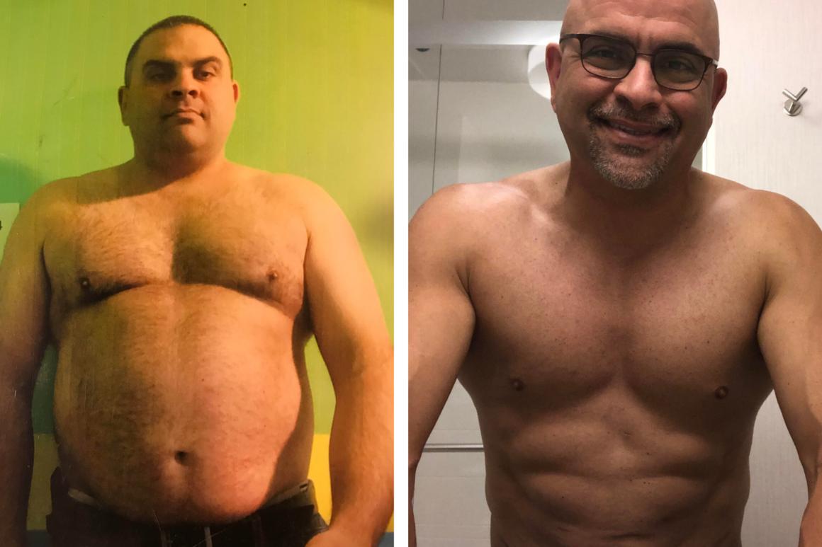 Tom – 5 year post sleeve gastrectomy update! *