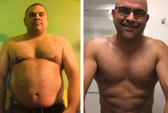 Tom – 5 year post sleeve gastrectomy update! *
