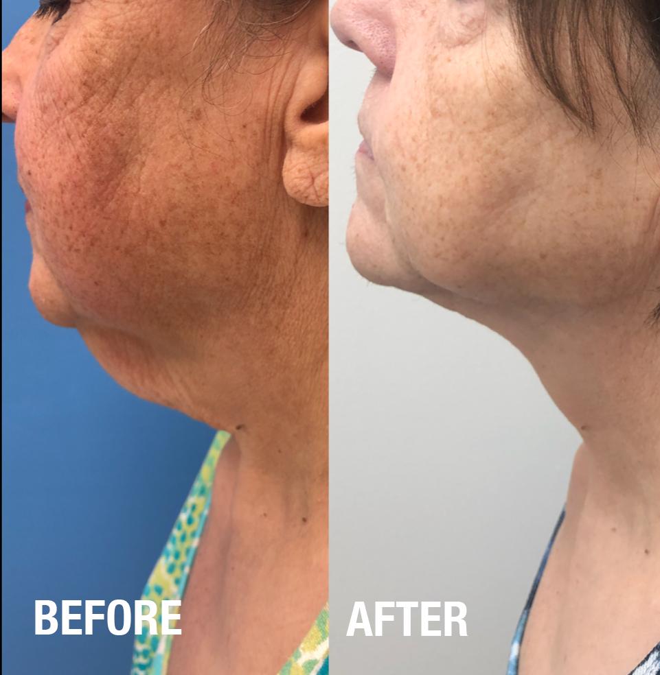 Rejuvenated neck*