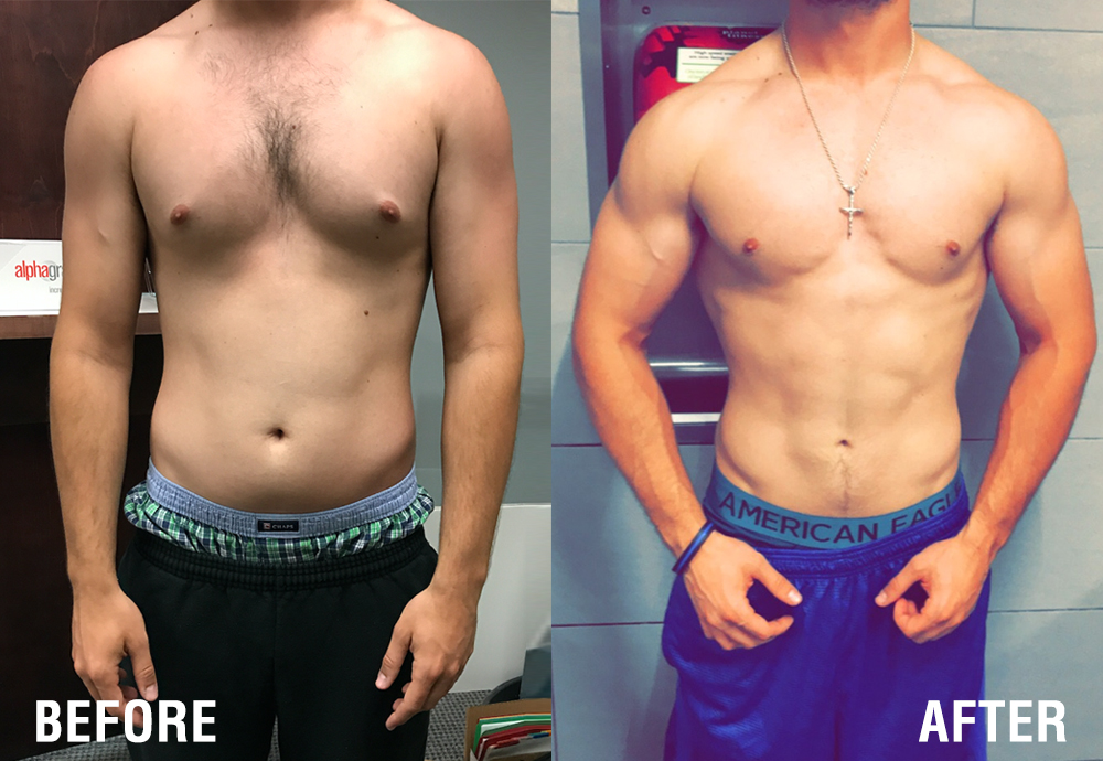 Gyno – Male Breast Reduction & Chiseled Abs*
