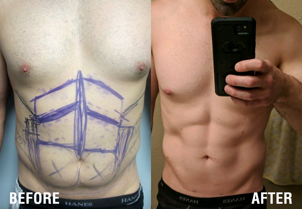 Chiseled Abs*