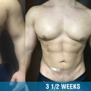 Chiseled Abs + Gyno – Male Breast Reduction*