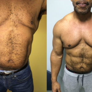 Chiseled Abs & Male Breast Reduction*