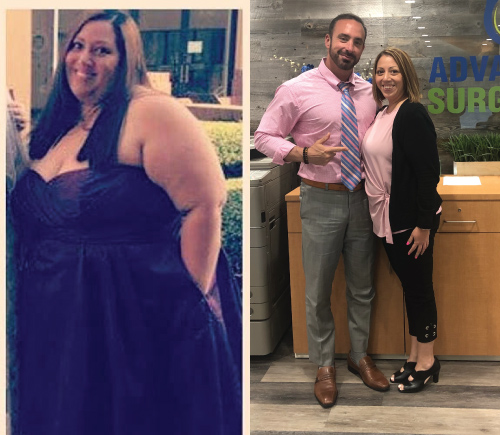 Thalia- Down 160 lbs after Gastric Sleeve thanks to Dr. Maffei and his team!*