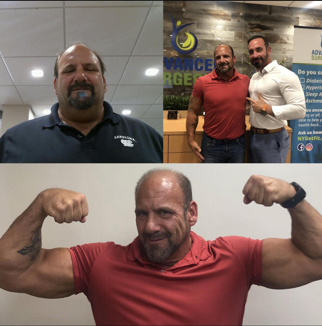 Down 125 lbs 9 months after sleeve thanks to Dr. Maffei and his team! *