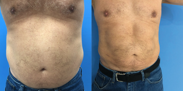 Chiseled Abs – 8 weeks after etching*