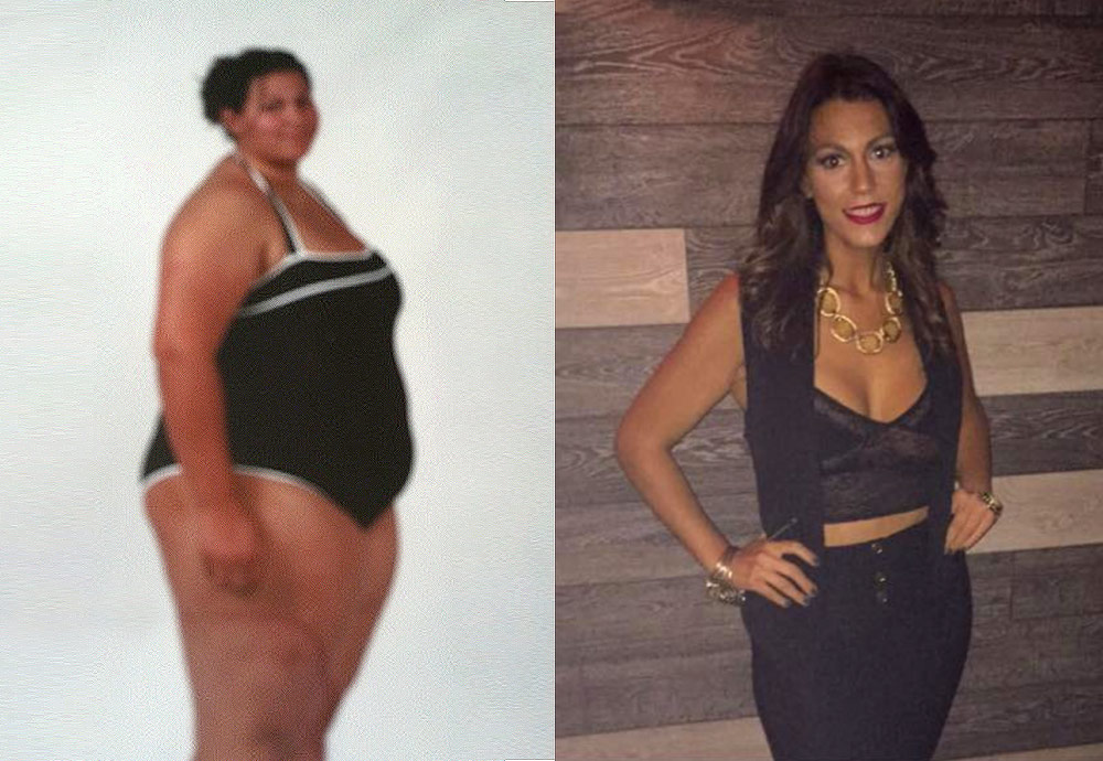 Katia – Gastric Bypass*