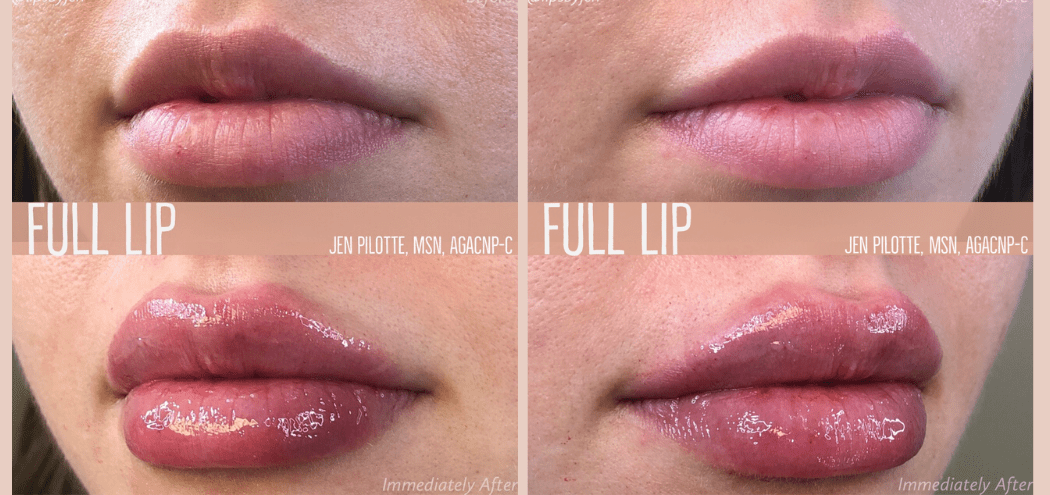 The Plastic NP™ before and after lip