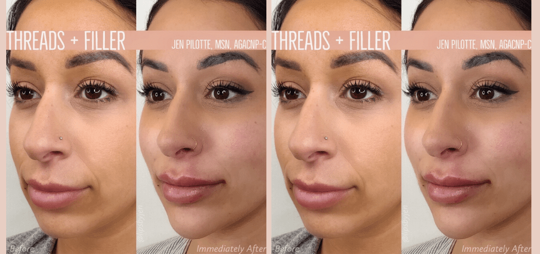 The Plastic NP™ before and after filler