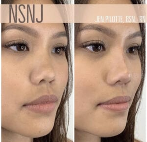 Non-surgical nose job before and afters