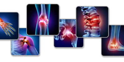 Pain of the joints concept as skeleton and muscle anatomy of the body with a group of sore joints as a painful injury or arthritis illness symbol for health care and medical symptoms with 3D illustration elements.