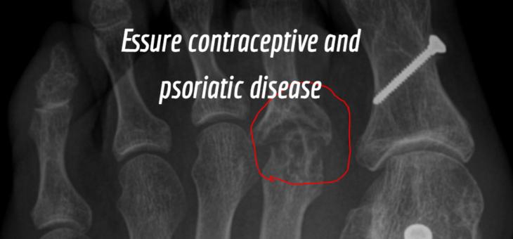 Essure Device and Arthritis