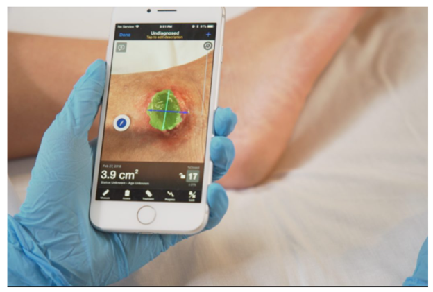 What is Virtual Wound Management?