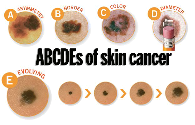ABCDEs-Skin-Cancer2