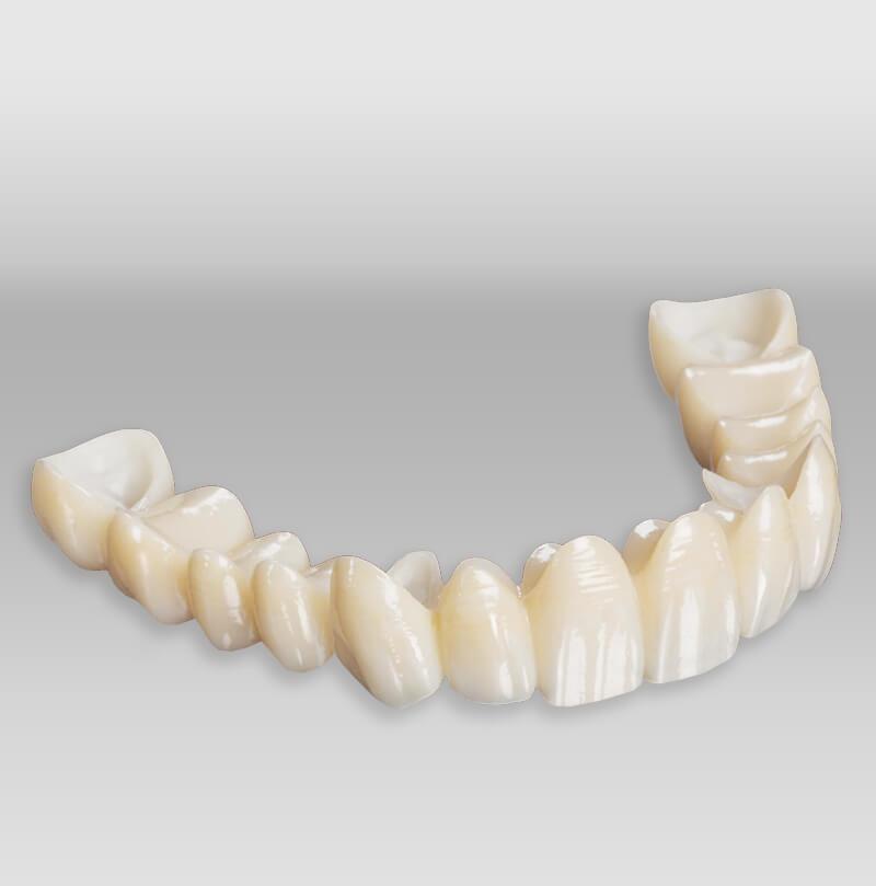 iTec Dental Laboratory - Irvine - Bruxzir Solid Zirconia