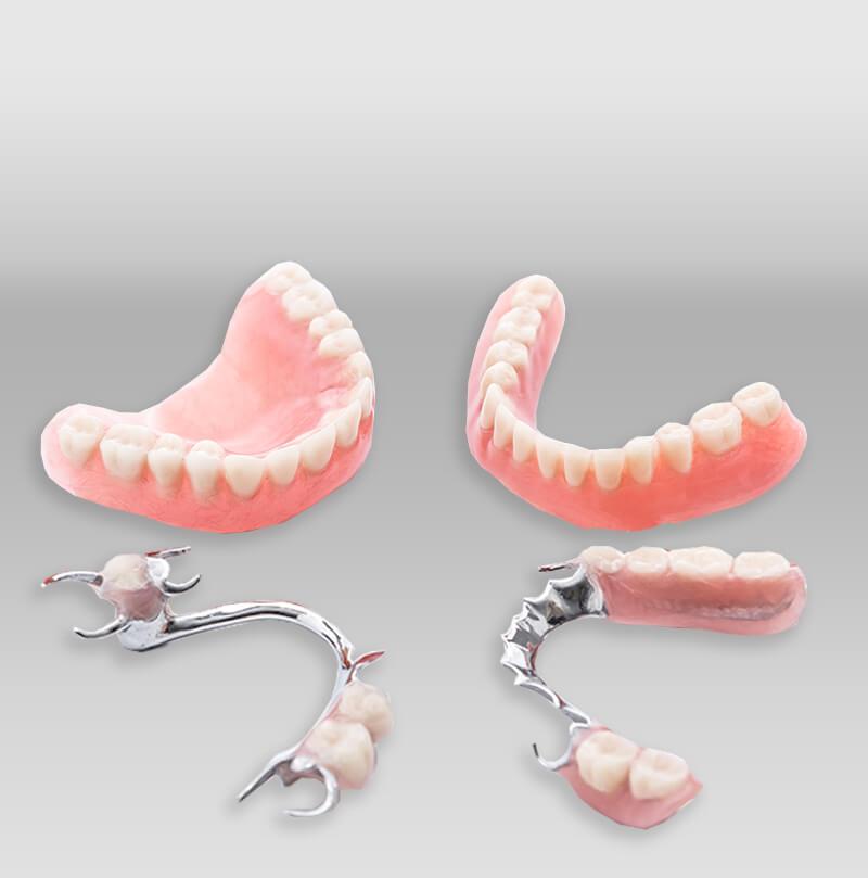 iTec Dental Laboratory - Irvine - Removable Partials & Dentures
