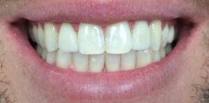 iTec Dental Lab - Irvine - After Photos
