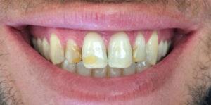 iTec Dental Lab - Irvine - Before Photos