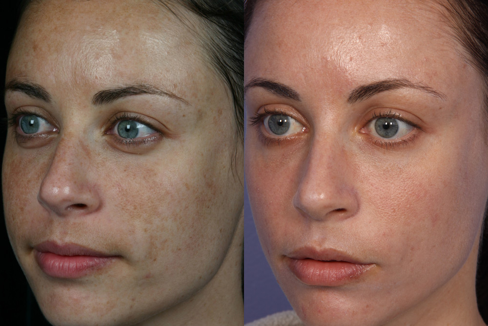 laser photo rejuventration before and after