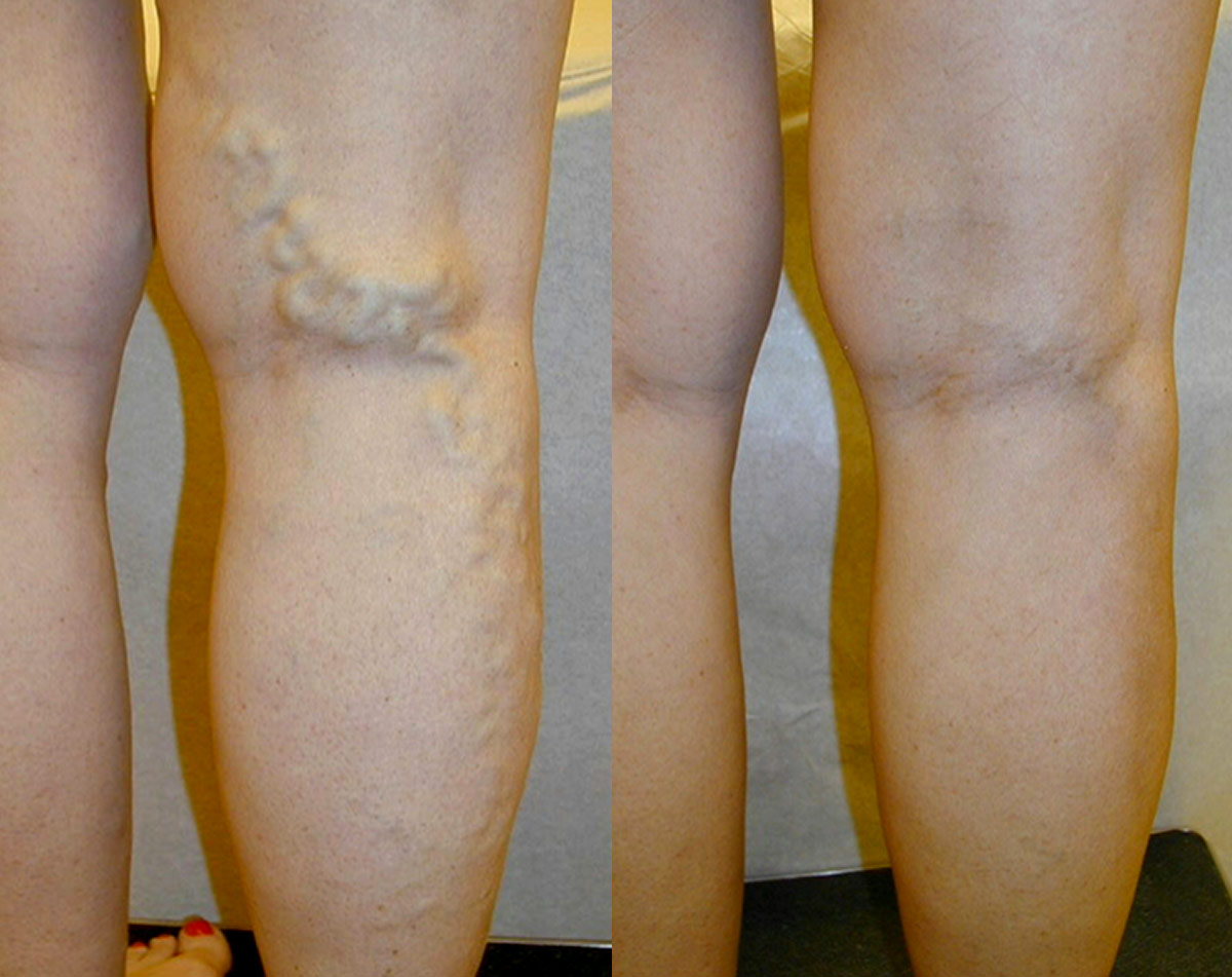 leg veins before and after