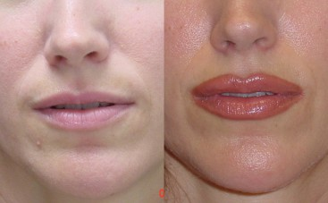 lip fillers coral gables