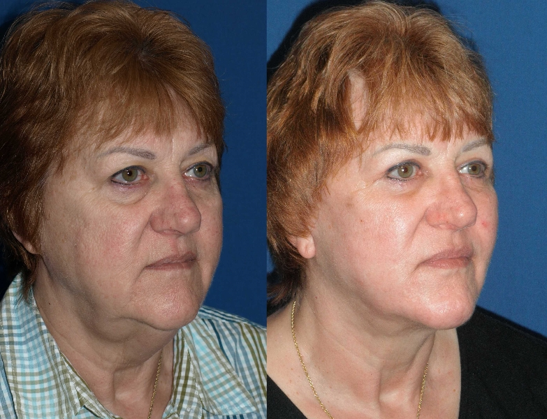 iquid facelift before and after