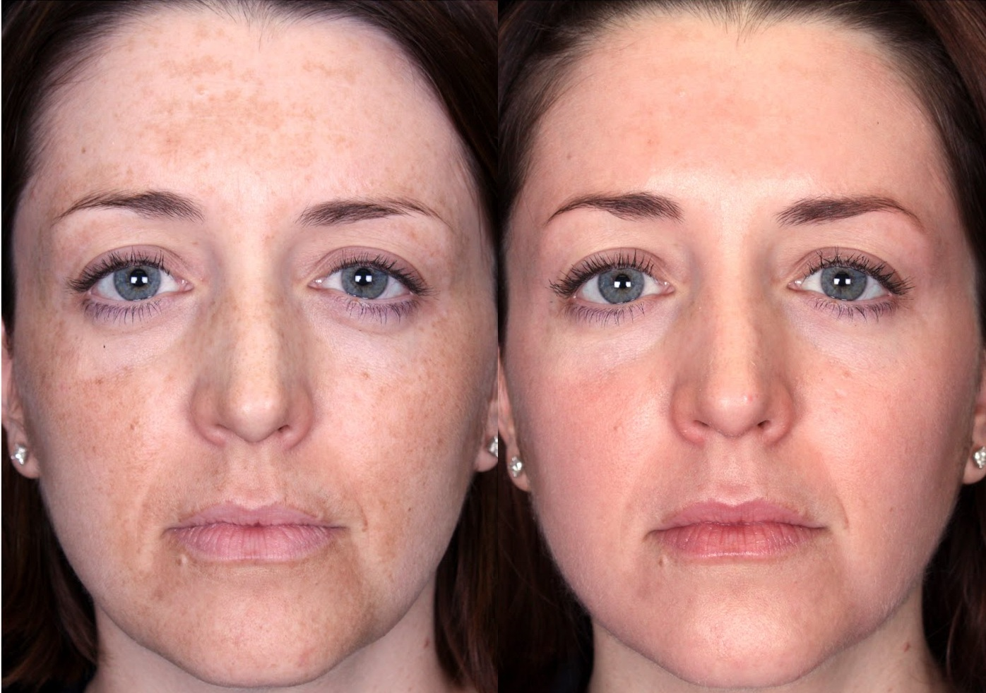 skin discoloration on face