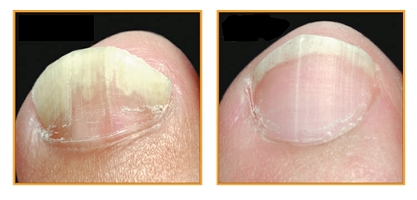 nails disease before and after