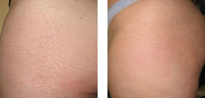 retchmarks before and after