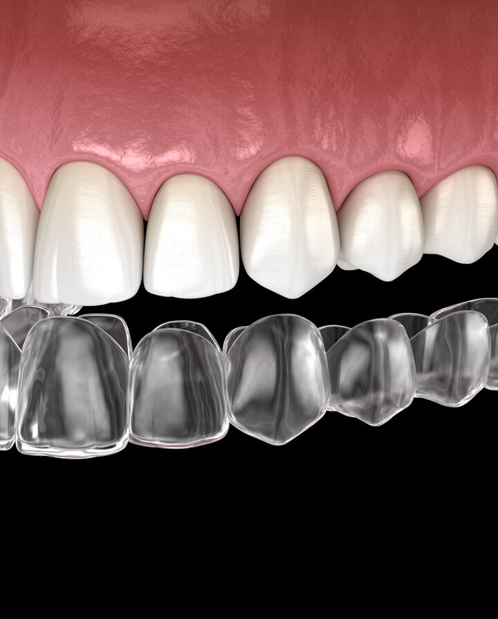 Assembly Bill 1998 – Preserving Your Right to Order Invisible Braces, Or not
