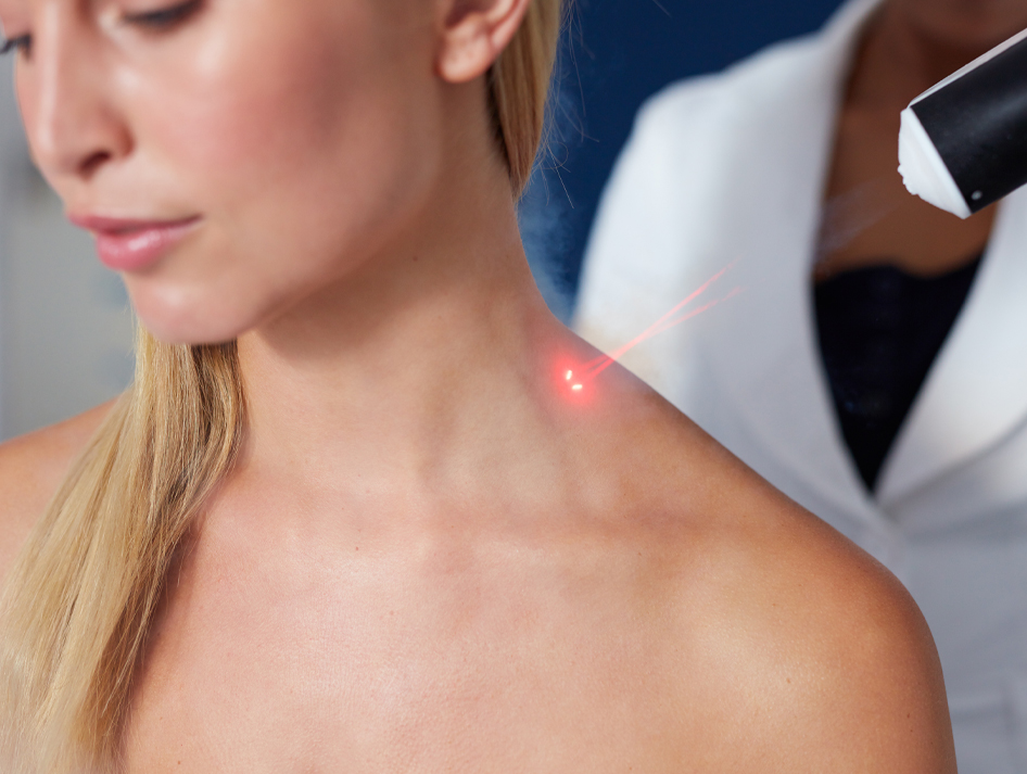 curewave-laser-therapy