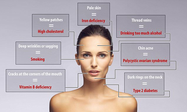 Do you know Face pimples identify different health symptoms?