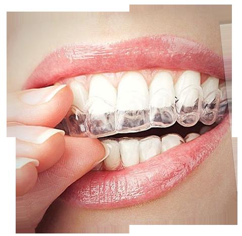 Inv-on-teeth-slanted