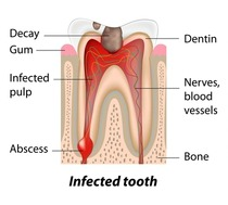 Illustration of an infected tooth that needs root canal. Call Dentistry for the Entire Family at 763-586-9988 to schedule an appointment.