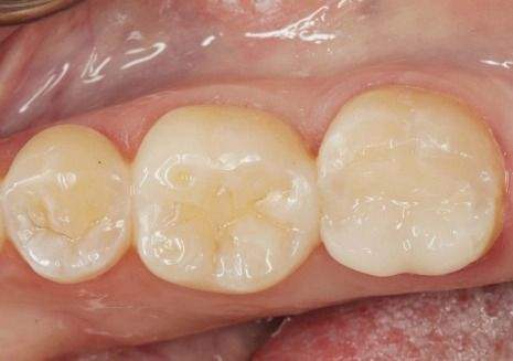 Porcelain dental fillings picture