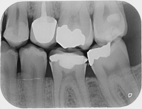 Digital dental bitewing x-rays