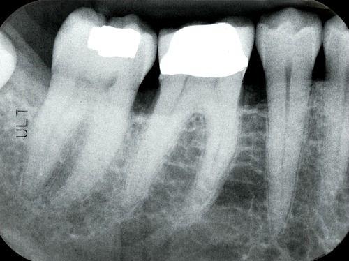 Digital dental periapical x-rays