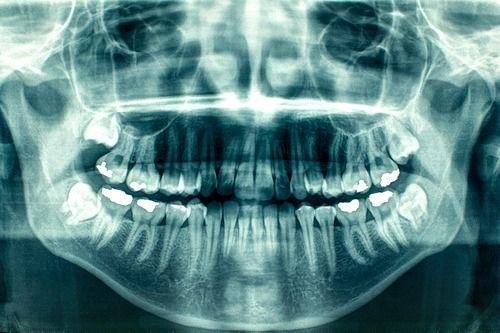 Panoramic dental x-rays