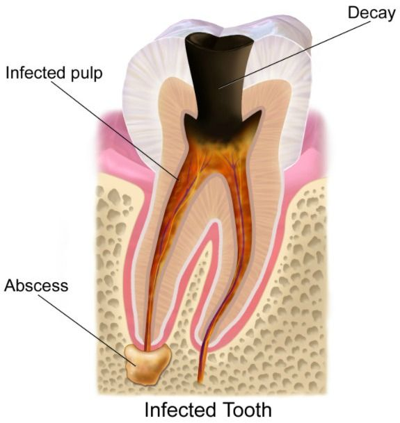 Tooth abscess and trauma can cause sensitive teeth