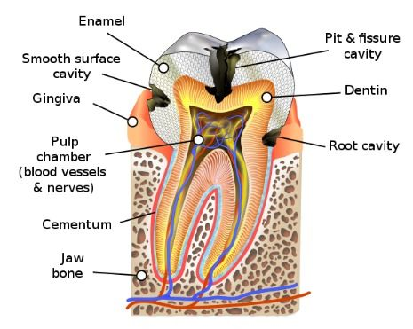 Sensitive teeth can be caused by tooth decay