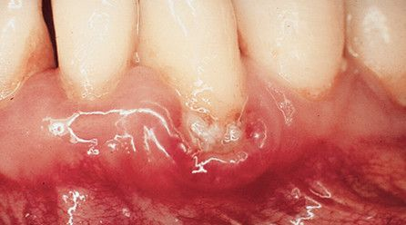 Inflamed gums due to plaque and tartar on teeth