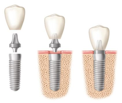 Picture of single tooth implant