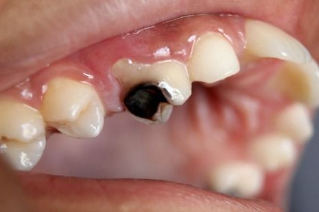 Tooth decay may appear as a black spot on a tooth